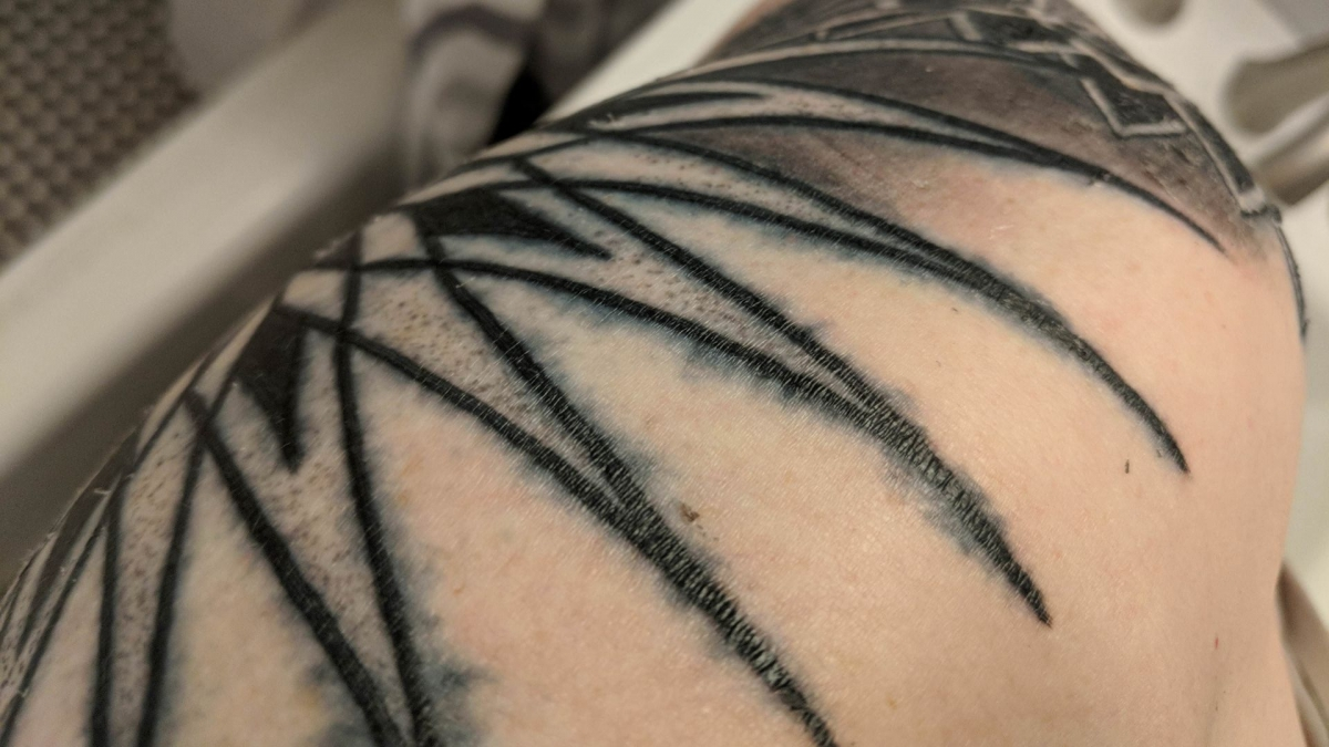 Heard of blowouts in tattoos? Here's what it means if your ink looks blown out
